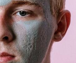 skin-condition-acne-scars-350.jpg