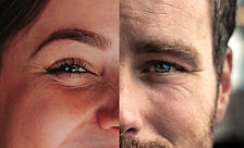 skin-condition-wrinkles-350.jpg