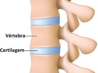 Como melhorar a saúde das cartilagens com o COLÁGENO?