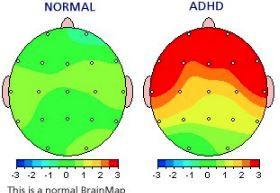QEEG Brain Map