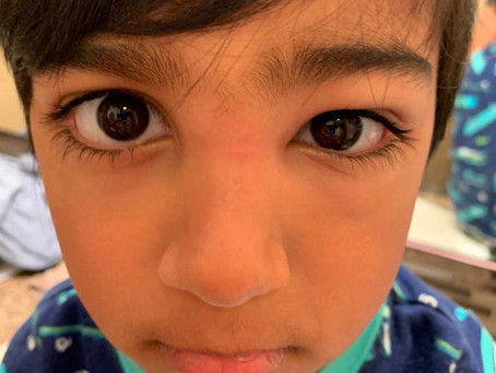 The Case of the Swollen Eyelid