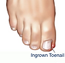 Permanent Pain Relief of Ingrown Nail
