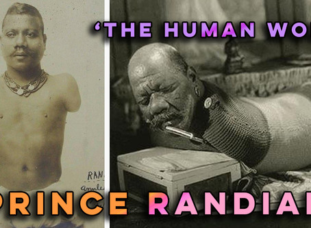 Freak show star Prince Randian - 'the Human Worm' - was  born with no limbs