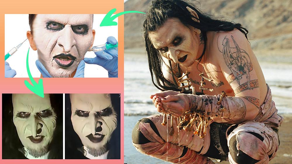 mortiis, mortiis plastic surgery, sinisterisles