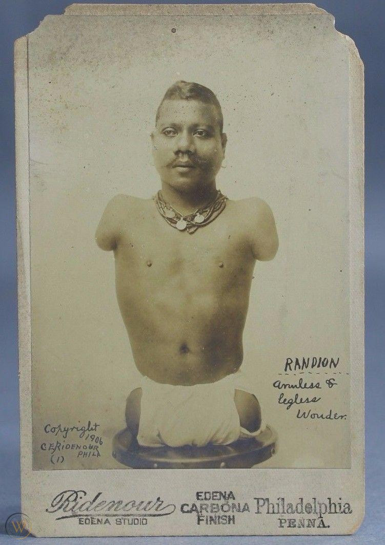 A vintage photo of Prince Randian, who was able to roll a cigarette and light it with a match