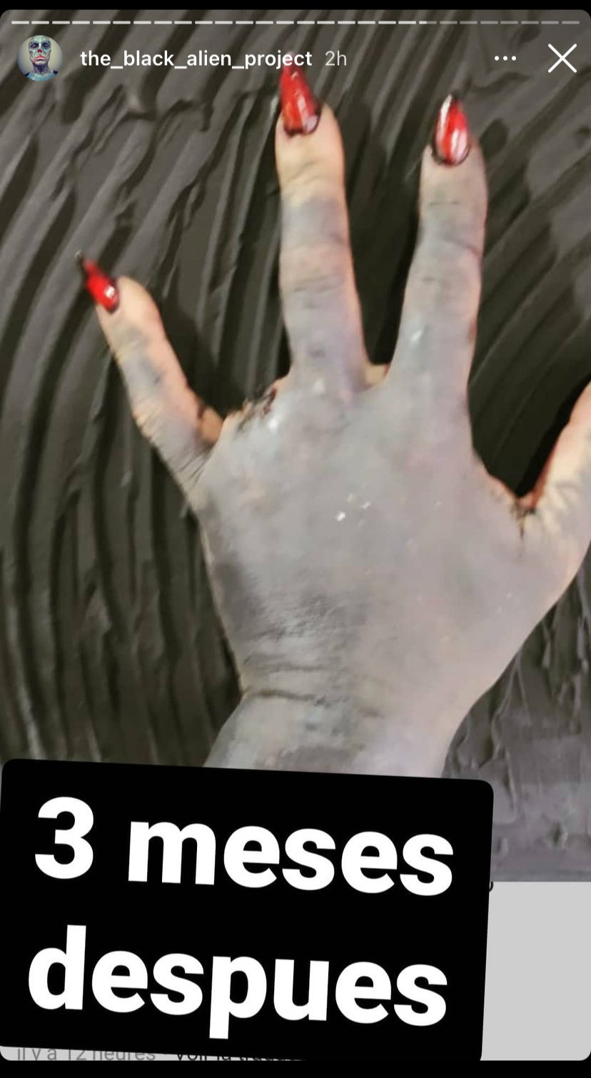 This picture shows a healed hand three months after the removal of the ring finger