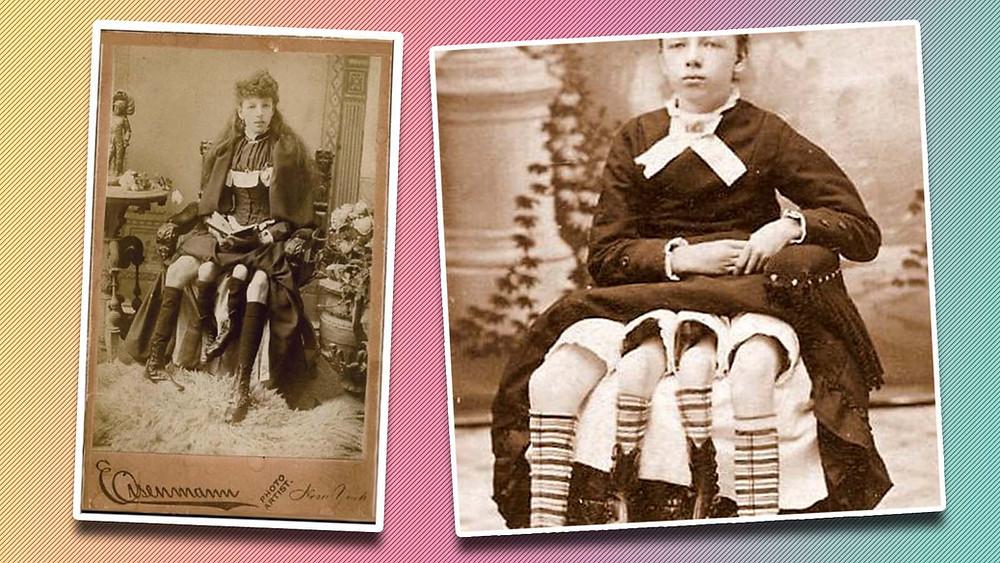 myrtle corbin, four legged woman, victorian freakshow