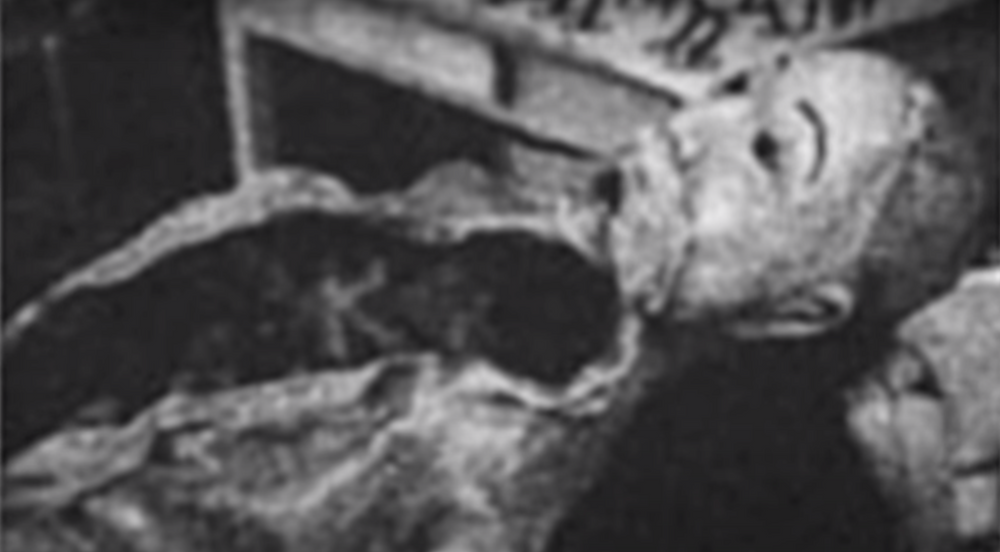 Archive pictures of Elena Hoyos rotting body, patched together by the lusty old doctor