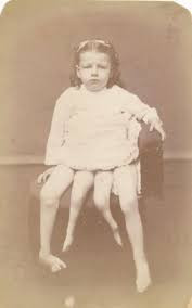 Myrtle Corbin was a 'dipygus', meaning she had two pelvises