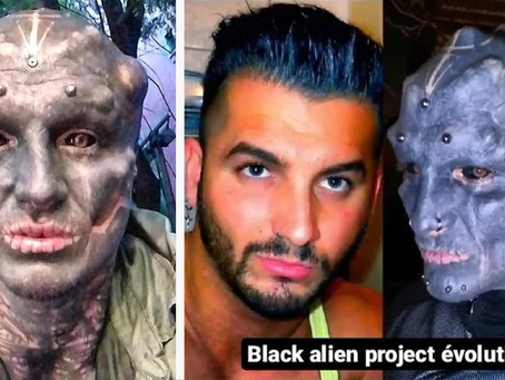 The Black Alien: Body modification enthusiast wants to chop off his nose