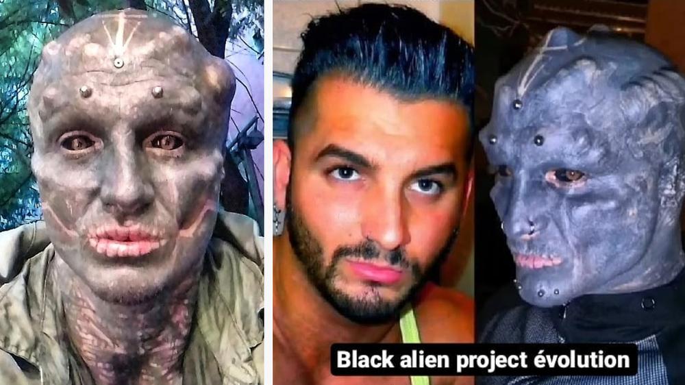 « Black Alien » : Après les oreilles, le Montpelliérain se fait retirer le nez