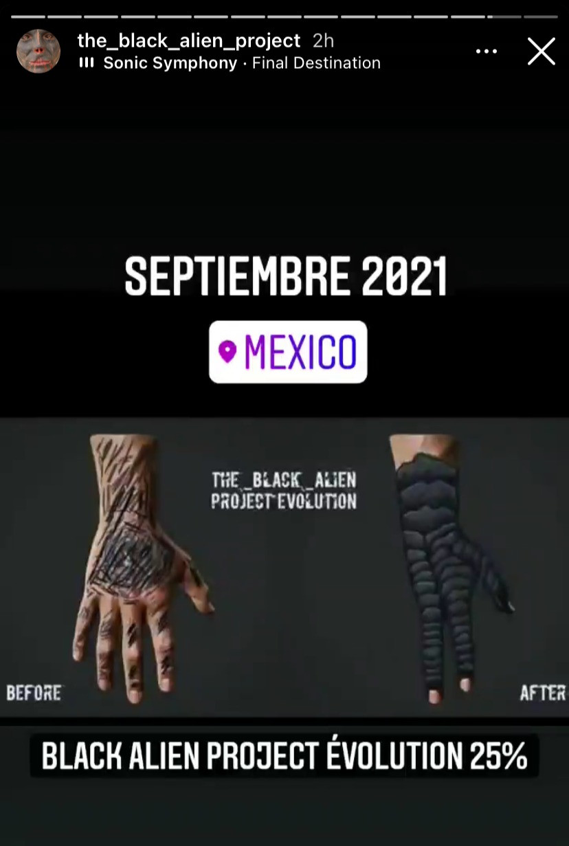 The Black Alien revealed he will have the operation on his hands in Mexico this September