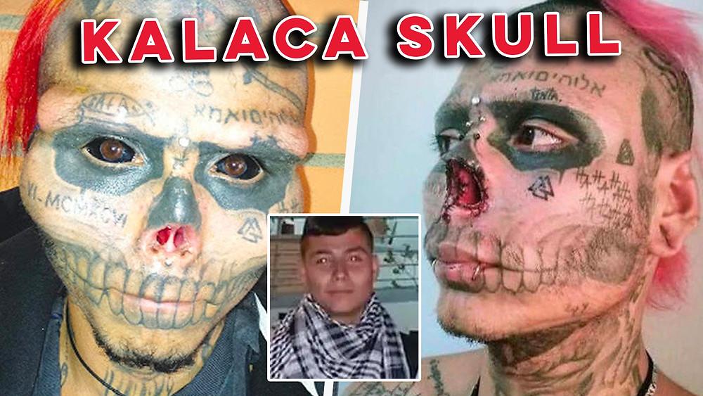 kalaca skull before surgery