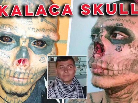 Kalaca Skull: 'I chopped my nose off, my genitals are next!'