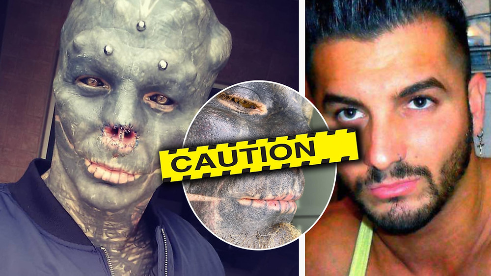 Black Alien nose removed Anthony Loffredo