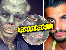 The Black Alien has cut off his nose - see graphic photos