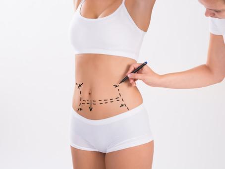 Hidrolipoclasia VS Liposucción