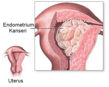 Rahim İç Zarı (Endometrium) Kanseri