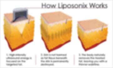 liposonix (3).jpg
