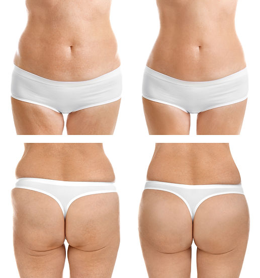 yağ alma Liposuction