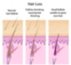 female-pattern-baldness-300x273.jpg