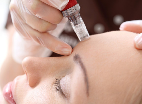 Microneedling: Pre/Post Treatment Instructions