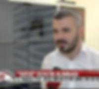 Xətai Klinikasi - Sac əkimi - Saç əkilməsi - sac ekimi