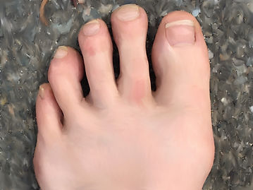 Foot with normal nails