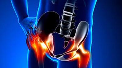 Παράξενοι πόνοι που μπορεί να εμφανιστούν στο σώμα σας λόγω προβλημάτων του ισχίου