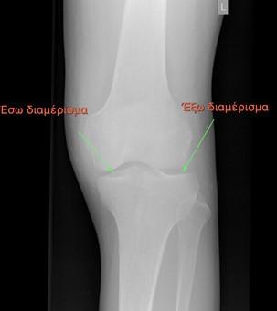 Ολική ή μερική αρθροπλαστική γόνατος: ποια είναι η διαφορά;