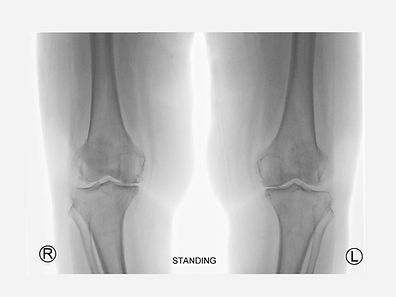 Film standing X ray knee radiograph show