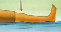 Οδηγός ασκήσεων μετά από επέμβαση ολικής αρθροπλαστικής γόνατος