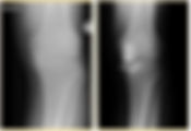 Knee-3.png