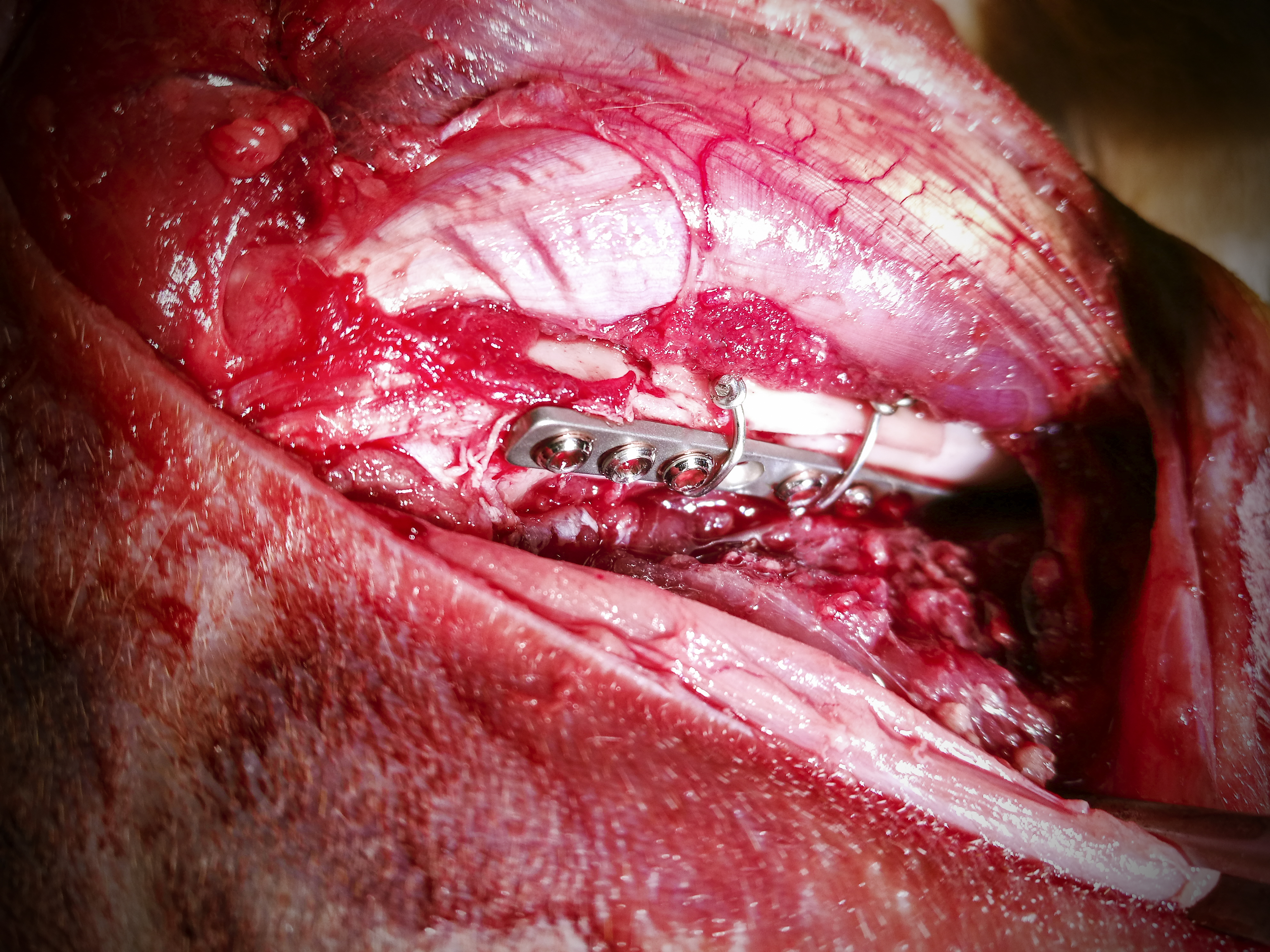 Osteosynteza - chirurgia kości