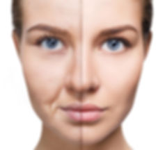 CIT, microneedling training, model showing before and after microneedling skincare treatment.