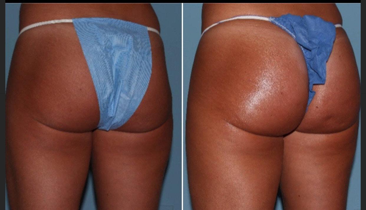 Buttocks lift Enchancement