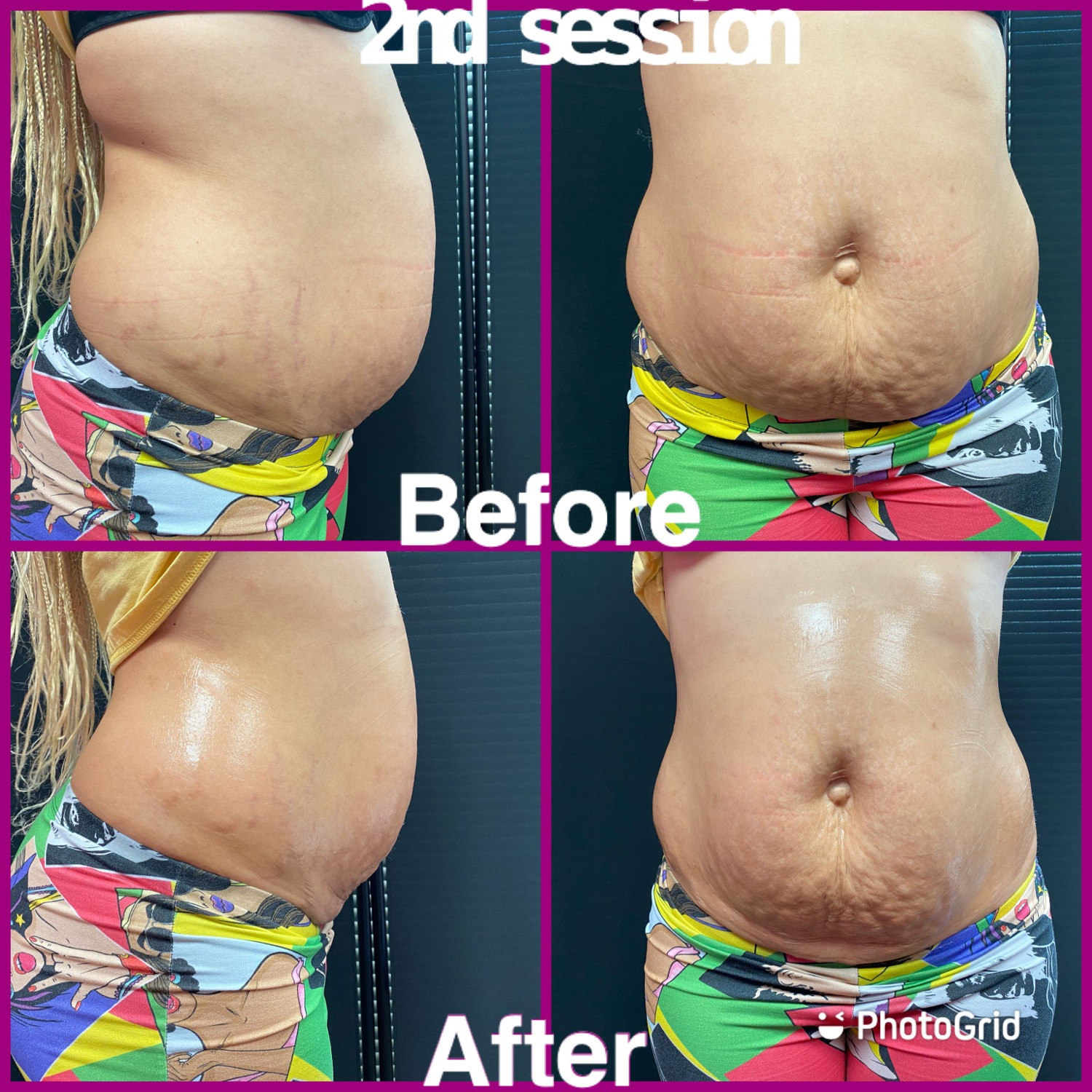 Body contouring (6 sessions)