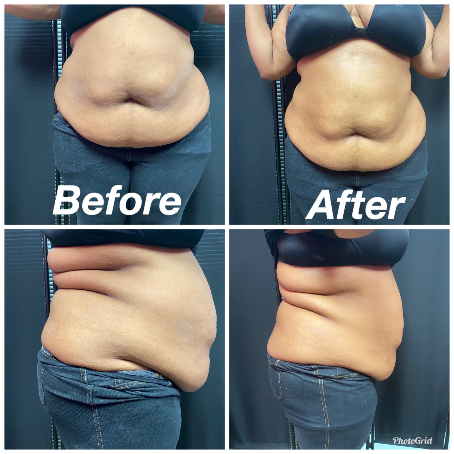 Body contouring (12 sessions)