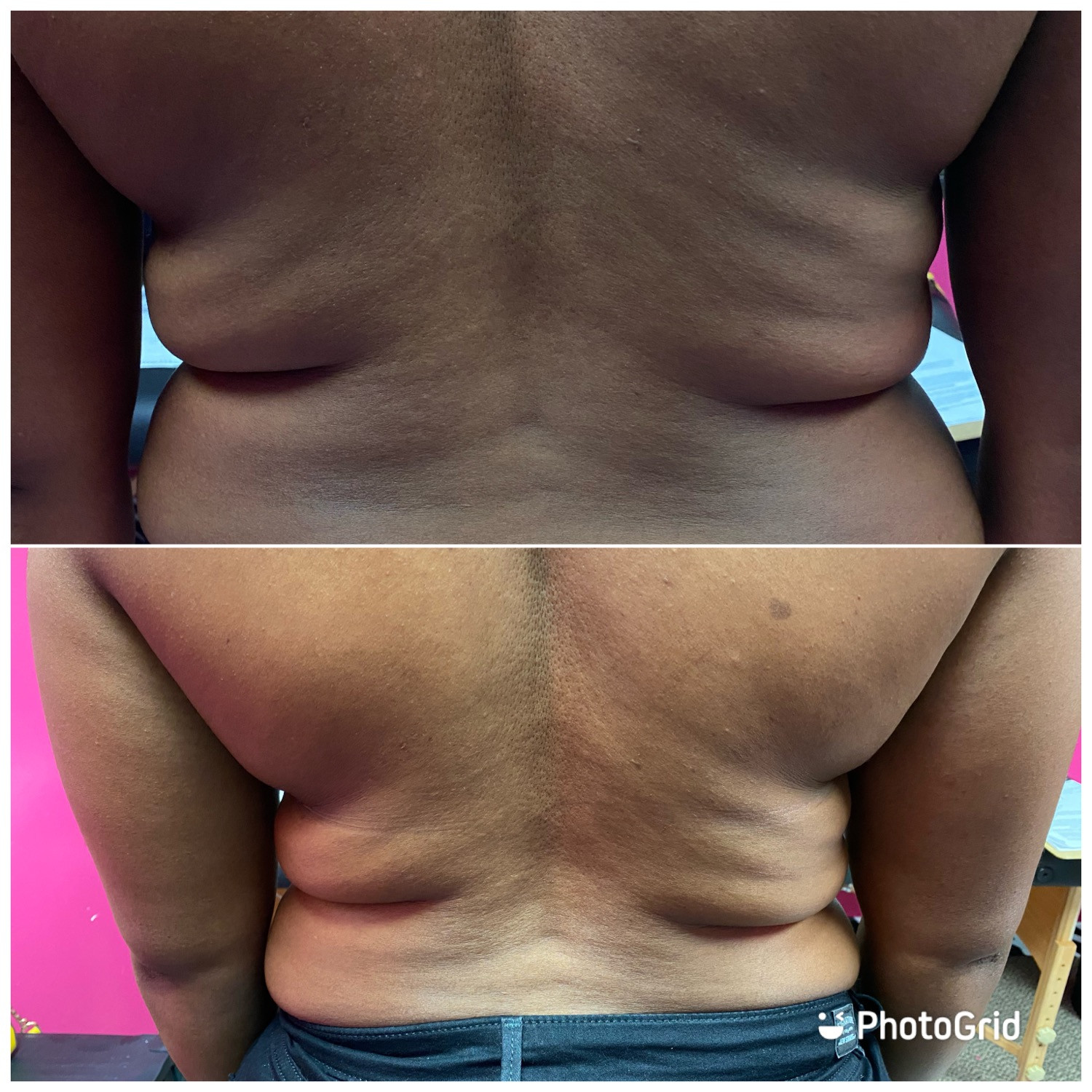 Body contouring (9 sessions)