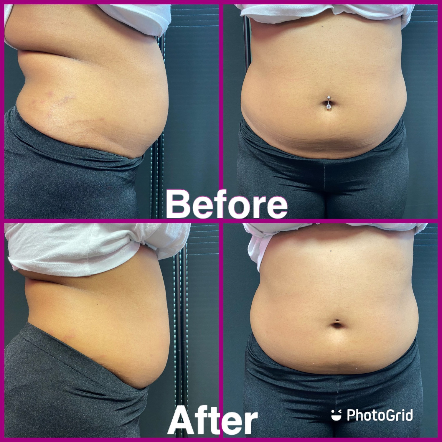 body contouring( 3 sessions)