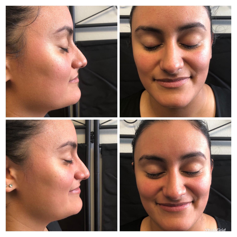 Non-Invasive facials