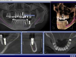 3-D диагностика