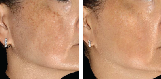 Pigmented lensions