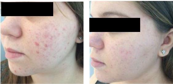 Inflamatory acne