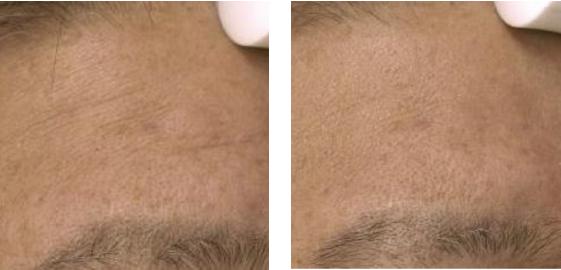 Scalp lifting and circulation