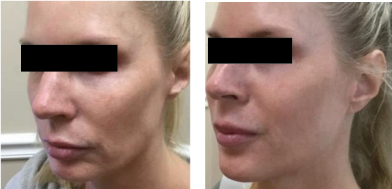 Face and tightening & lifting