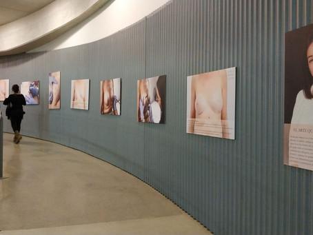 Exposición fotográfica oncológica