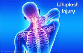 Whiplash After A Car Accident