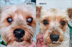 Catarata antes e depois da facoemulsificação