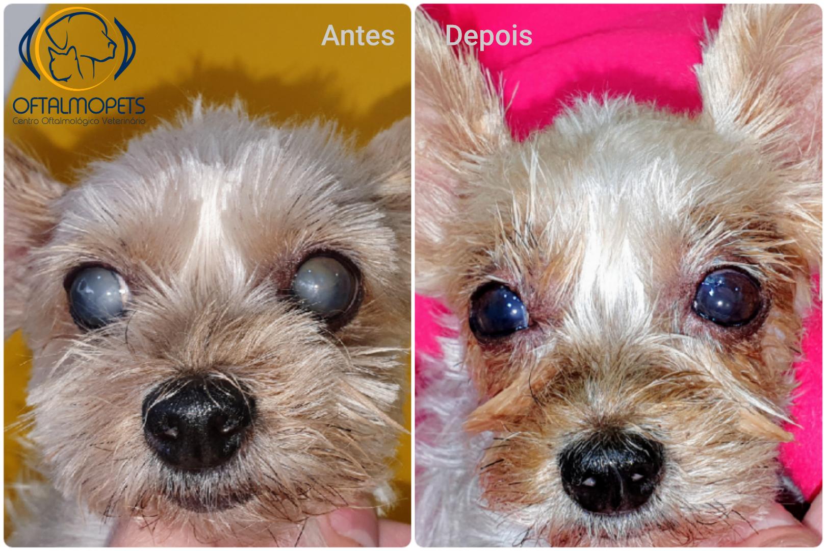 antes e depois catarata hipermatura